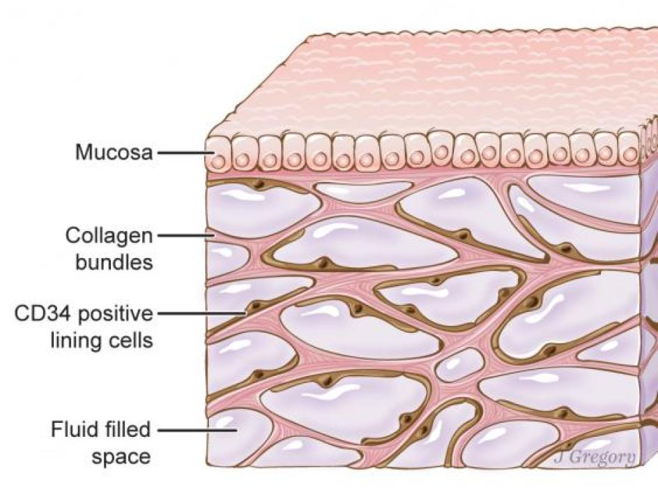 The newfound organ, here beneath the top layer of skin, is also in tissue layers lining the gut, lungs, blood vessels and muscles. The organ is a bodywide network of interconnected, fluid-filled compartments supported by a meshwork of strong, flexible proteins (Jill Gregory)