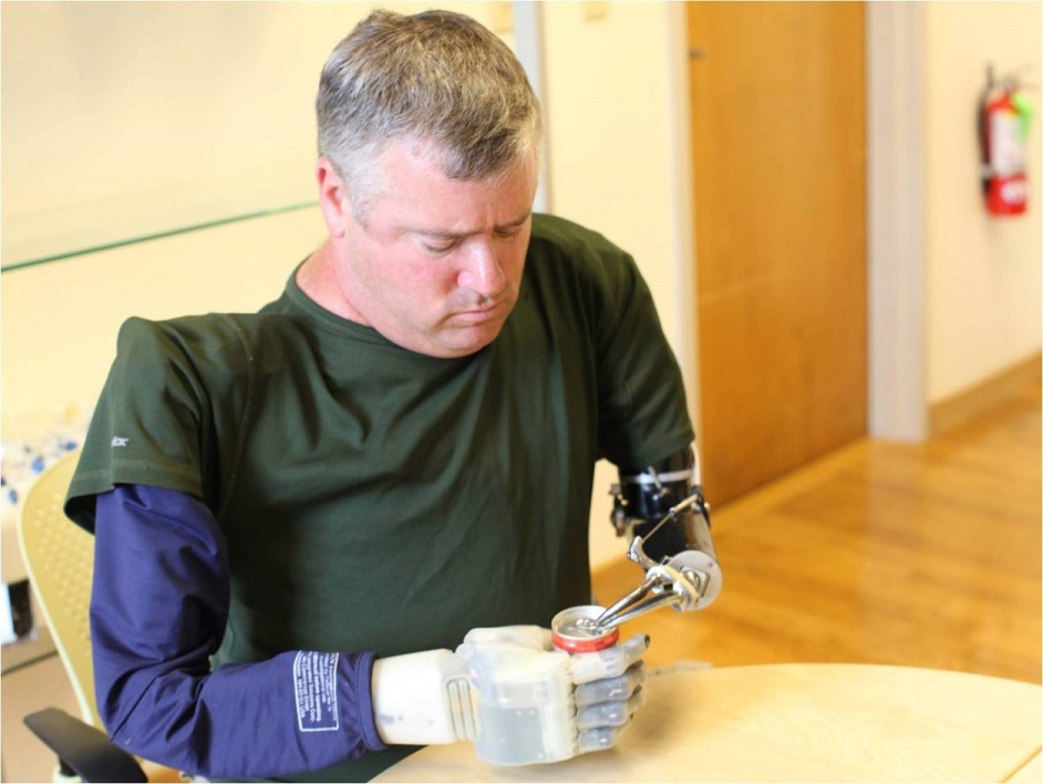 "This handout photo obtained from the US Defense Advanced Research Projects Agency(DARPA) on September 14, 2015 shows a volunteer amputee fitted with an experimental prosthetic hand that lets him ""feel"" sensations, holding a soada can. After six years of development, the Revolutionizing Prosthetics program developed two anthropomorphic advanced modular prototype prosthetic arm systems, including sockets, which offer increased range of motion, dexterity and control options. The Revolutionizing Prosthetics program is ongoing and aims to continue increasing functionality of the DARPA arm systems so servicemembers with arm loss may one day have the option of choosing to return to duty. Additionally, the dexterous hand capabilities developed under the program have already been applied to small robotic systems used in manipulating unexploded ordnance, thus keeping soldiers out of situations that have led to limb loss prothèse"