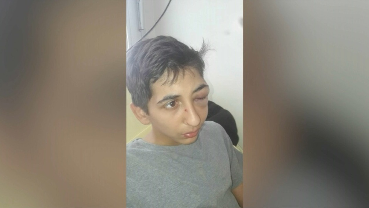 Photo de Gabriel, 14 ans, gravement blessé à l'arcade - BFMTV